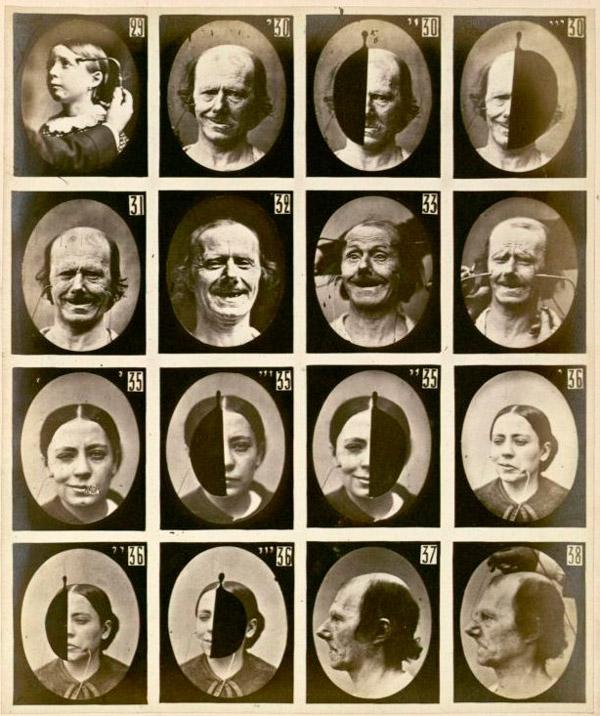Сердечную улыбку можно отличить от фальшивой (или так называемой социальной) по сокращению мимических мышц вокруг глаз. Эту закономерность впервые установил французский невролог Гийом Дюшен де Булон, поэтому искреннюю улыбку иногда называют улыбкой Дюшена. На этих снимках 1862 года запечатлены опыты Дюшена: он прикладывал к мимическим мышцам лиц испытуемых электрическое напряжение, чтобы отследить, как их сокращение влияет на выражение лица. Фото с сайта en.wikipedia.org